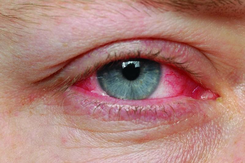 конюнктивит, грип на окото