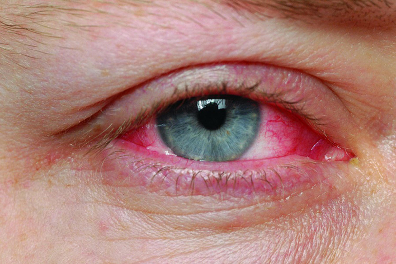 """Конюнктивит през зимата. Има ли опасност от заразяване с """"грип на окото""""?"""